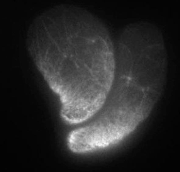 Confocal laser scanning microscopy image showing two stable-bleb cells from gastrulating zebrafish embryos expressing Lifeact (white) to visualize their actomyosin cytoskeleton. / © Verena Ruprecht and Carl-Philipp Heisenberg