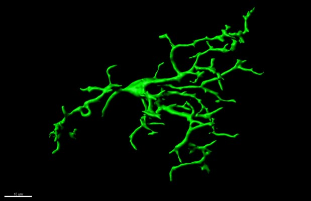 In the healthy brain of adults, microglia stretch trough the tissue checking if pathways are functioning correctly. © Gloria Colombo/Siegert group/IST Austria
